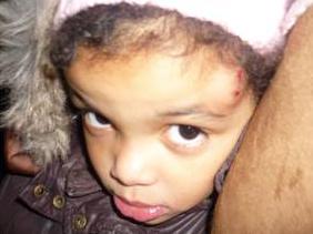 La bambina francese colpita da una pietra, durante una manifestazione contro l'aborto.