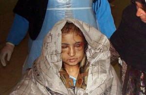 Una sposa bambina violentata.
