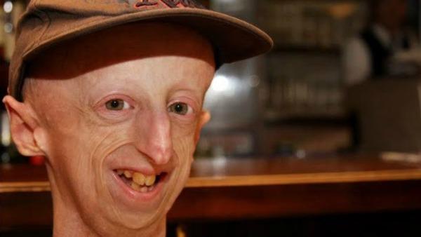 Sammy progeria