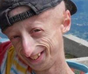 La storia di Sammy, il ragazzo più longevo del mondo