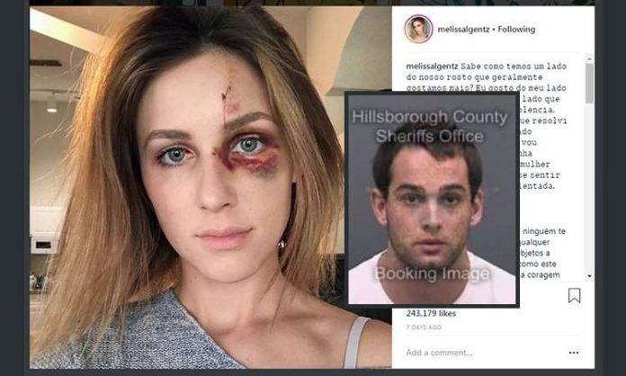 Melissa Gentz è una ragazza brasiliana che studia in Florida. Molto popolare in patria, ha utilizzato Instagram, social dove conta oltre 220mila follower, per denunciare l'ex ragazzo di violenza domestica.