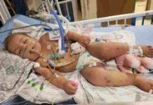 Bambina di 1 anno dichiarata morta si risveglia grazie alla sua mamma