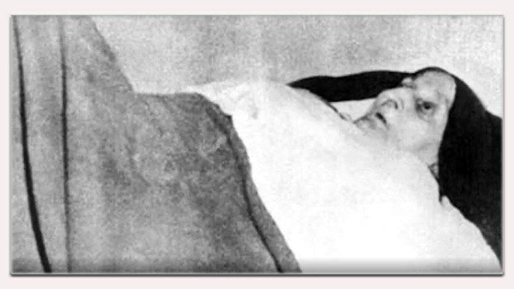 Maria Antonia Samà, per oltre 60 anni paralizzata a letto con le ginocchia alzate